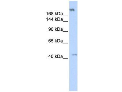 anti-Polymerase (RNA) III (DNA Directed) Polypeptide A, 155kDa (POLR3A) (Middle Region) antibody