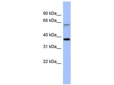 anti-Melanoma Antigen Family B, 1 (MAGEB1) antibody