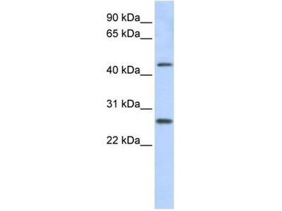 anti-PRAMEF10 Antibody