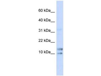 anti-IL15 (Interleukin 15) antibody