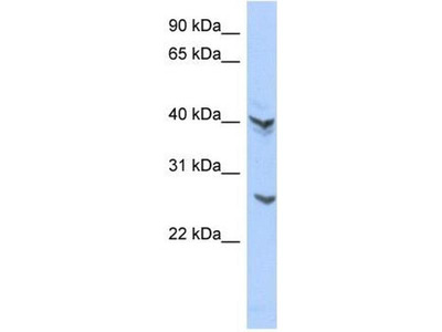 anti-ATPase, H+ Transporting V0 Subunit E2 (ATP6V0E2) antibody