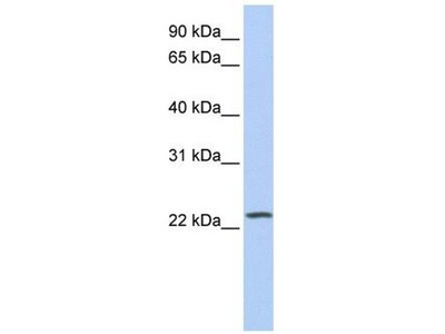 anti-Phosphatidylinositol-4-Phosphate 5-Kinase-Like 1 (PIP5KL1) antibody