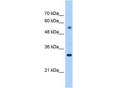 anti-TTC5 Antibody