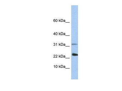 anti-EXOSC3 (exosome component 3) antibody