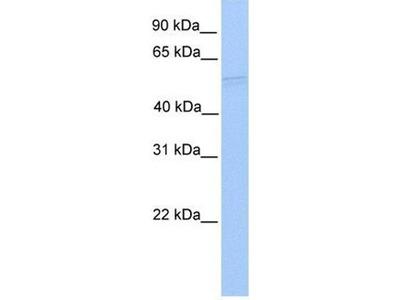 anti-RUVBL1 (RuvB-like protein 1) antibody