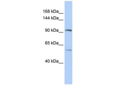 anti-Leucine Rich Repeat Containing 66 (LRRC66) antibody