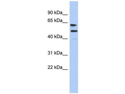 anti-CXorf67 Antibody