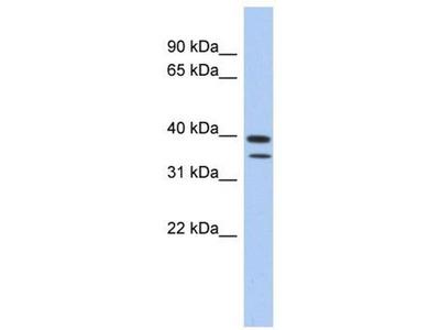 anti-METTL19 (TRMT44) antibody