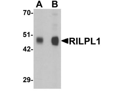 anti-Rab Interacting Lysosomal Protein-Like 1 (RILPL1) (N-Term) antibody
