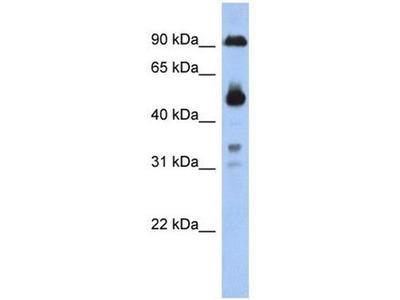 anti-CCDC144B antibody