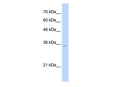 anti-Pyrophosphatase (Inorganic) 1 (PPA1) antibody