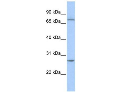 anti-Ring Finger and CHY Zinc Finger Domain Containing 1, E3 Ubiquitin Protein Ligase (RCHY1) (N-Term) antibody