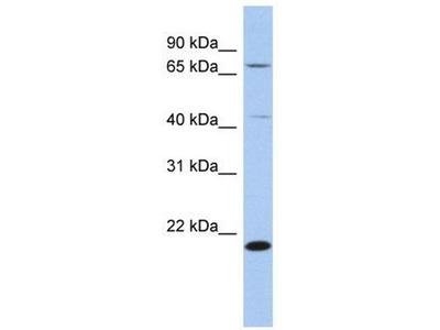 anti-S-adenosylmethionine decarboxylase (sam2) antibody