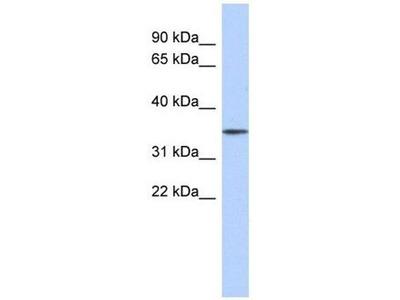 anti-FBXO31 (F-box protein 31) antibody