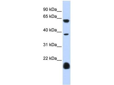 anti-Serotonin Receptor 3E (HTR3E) antibody