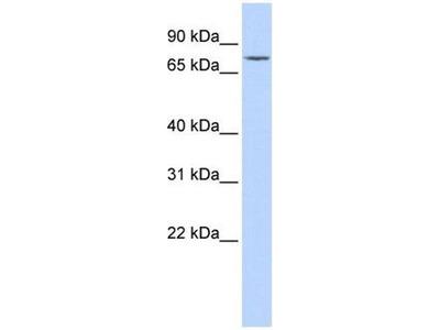 anti-GALC (Galactosylceramidase) antibody