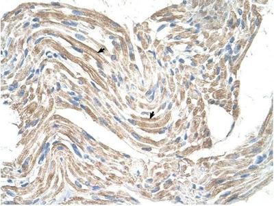 anti-Creatine Kinase, Mitochondrial 2 (Sarcomeric) (CKMT2) antibody