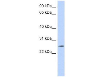 anti-Na+/K+ Transporting ATPase Interacting 4 (NKAIN4) (Middle Region) antibody
