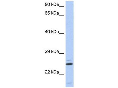 anti-TTC9C antibody