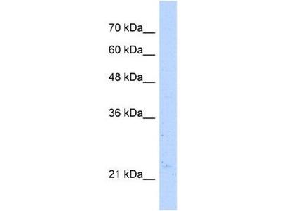 anti-NUDT16L1 antibody
