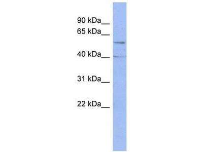 anti-PPP2CA Antibody
