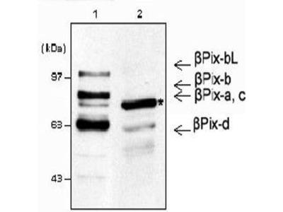 anti-ARHGEF7 antibody