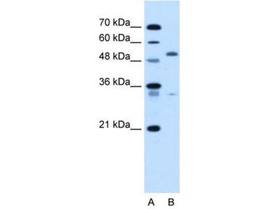anti-PODXL (Podocalyxin-Like) antibody