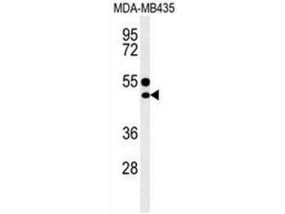 anti-Cluster of Differentiation 1e (CD1e) (AA 274-304), (Middle Region) antibody