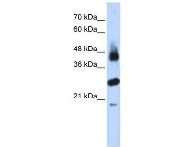 anti-FBXL2 antibody