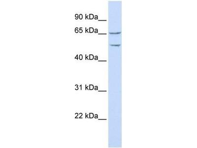 anti-TTYH1 antibody