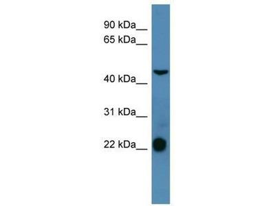 anti-Somatostatin Receptor 1 (SSTR1) antibody