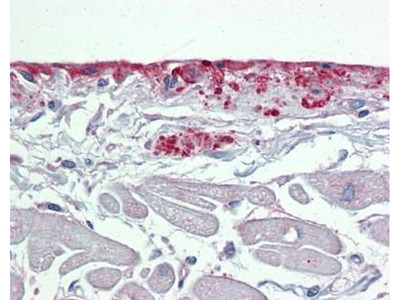 anti-periostin Antibody