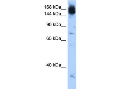 anti-NCAPD2 antibody