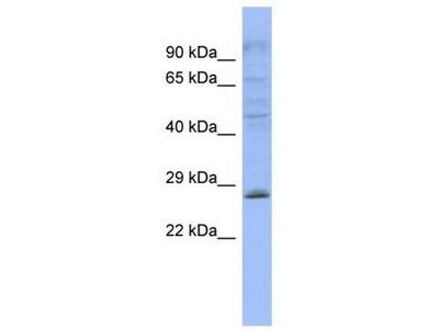 anti-PLEKHB2 antibody