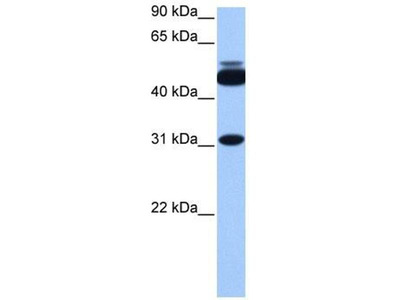 anti-Cylicin, Basic Protein of Sperm Head Cytoskeleton 2 (CYLC2) (C-Term) antibody