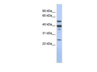 anti-Matrix Metallopeptidase 13 (Collagenase 3) (MMP13) antibody