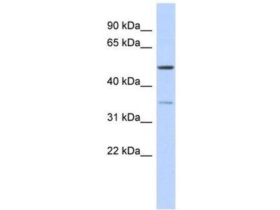 anti-CETP Antibody
