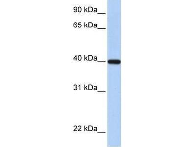 anti-Retinol Dehydrogenase 11 (All-Trans/9-Cis/11-Cis) (RDH11) antibody