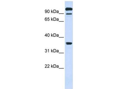 anti-PTPRE antibody