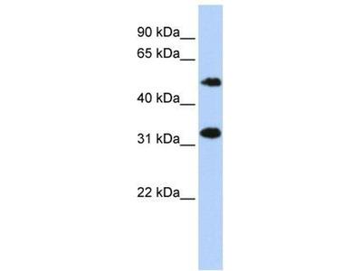 anti-C6orf150 (MB21D1) antibody