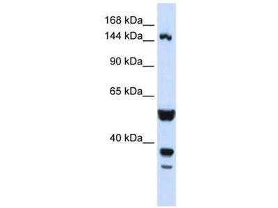 anti-ABI3BP antibody