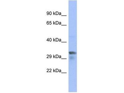 anti-PIM1 (LONP1) antibody