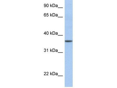 anti-LFNG (lunatic fringe) antibody