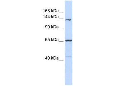anti-PCDH12 antibody