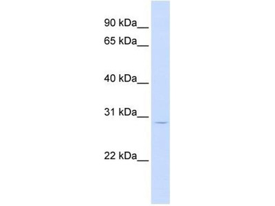 anti-LIF (Leukemia Inhibitory Factor) antibody