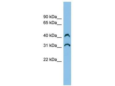 anti-Chromosome 3 Open Reading Frame 33 (C3orf33) antibody