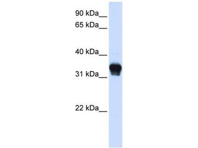 anti-CK1 alpha 1 (C-Term) antibody