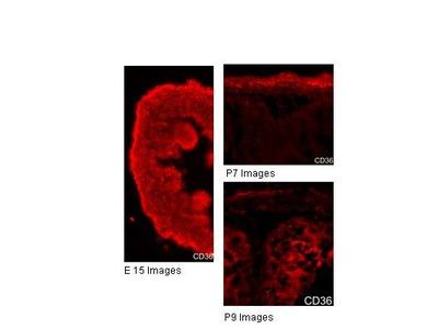anti-CD36 Molecule (thrombospondin Receptor) (CD36) antibody