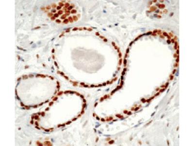 anti Androgen receptor