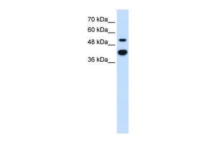 anti-Matrix Metallopeptidase 1 (Interstitial Collagenase) (MMP1) antibody